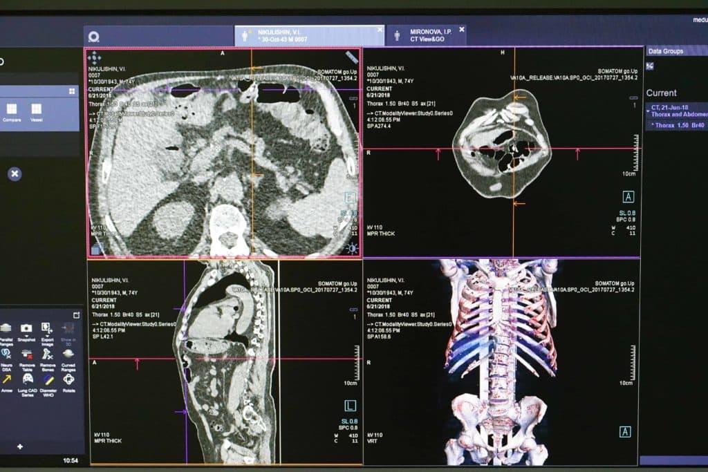 Снимок на МРТ